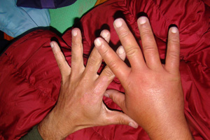 Swelling of hand